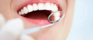 Ce trebuie să faci dacă vrei să ai dinți mai albi